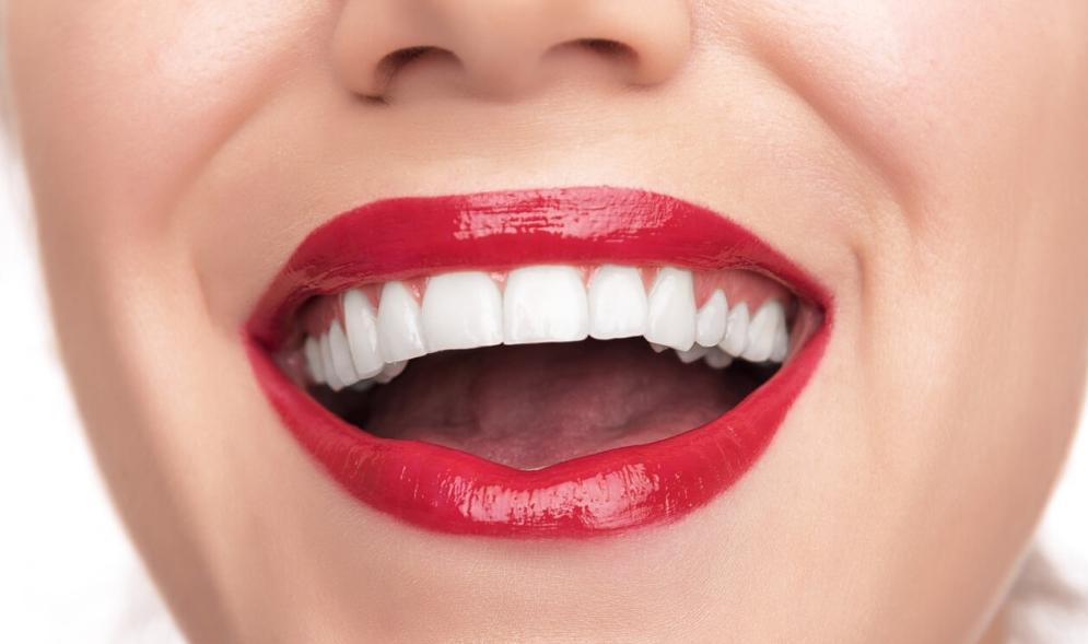 Виниры — белоснежная улыбка гарантирована